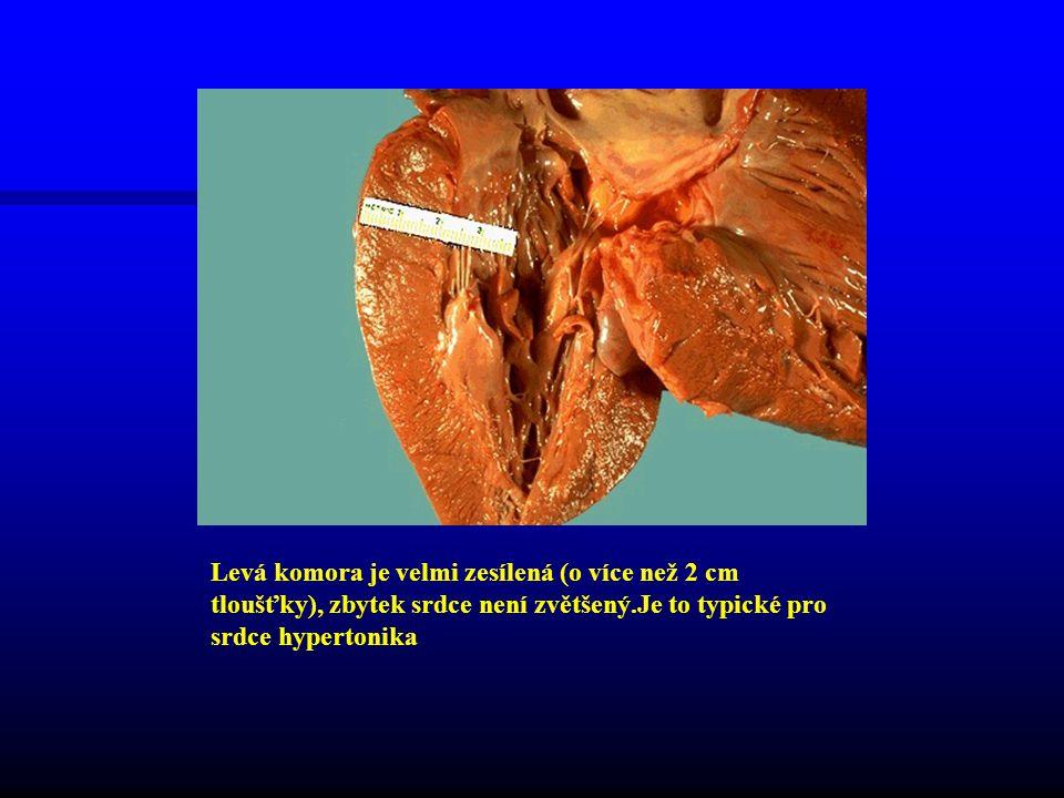 Levá komora je velmi zesílená (o více než 2 cm tloušťky), zbytek srdce není zvětšený.Je to typické pro srdce hypertonika
