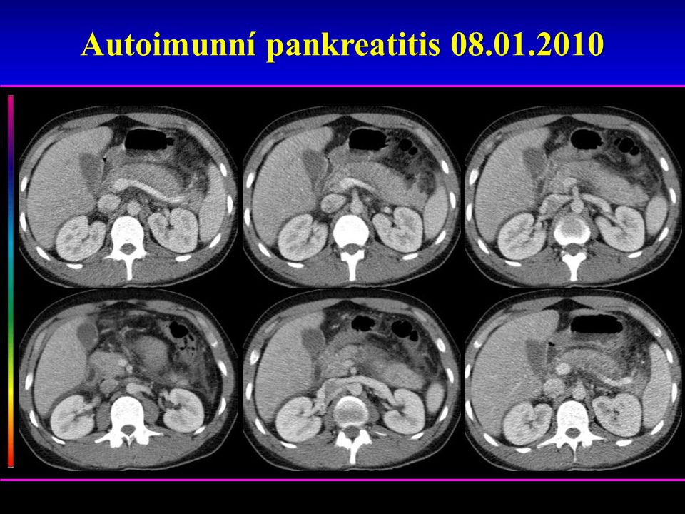 Autoimunní pankreatitis 08.01.2010