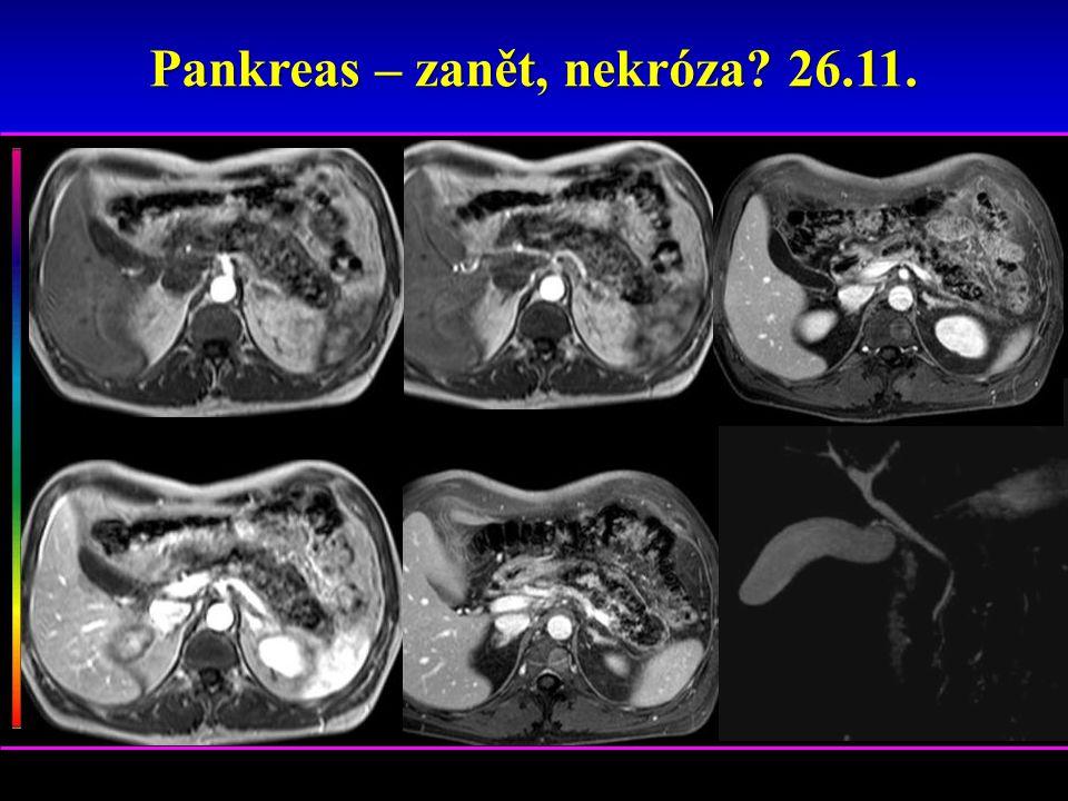 Pankreas – zanět, nekróza? 26.11.