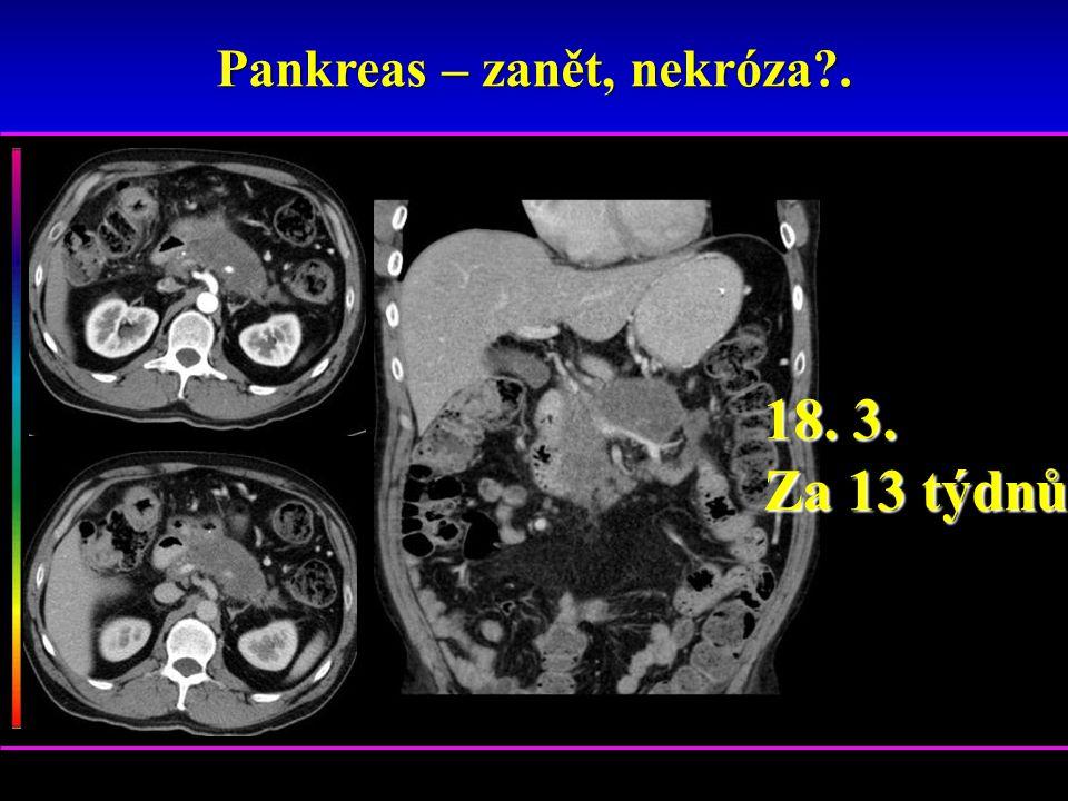 Pankreas – zanět, nekróza?. 18. 3. Za 13 týdnů