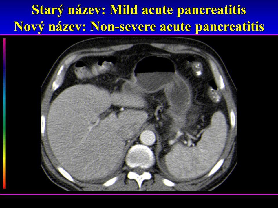 Starý název: Mild acute pancreatitis Nový název: Non-severe acute pancreatitis