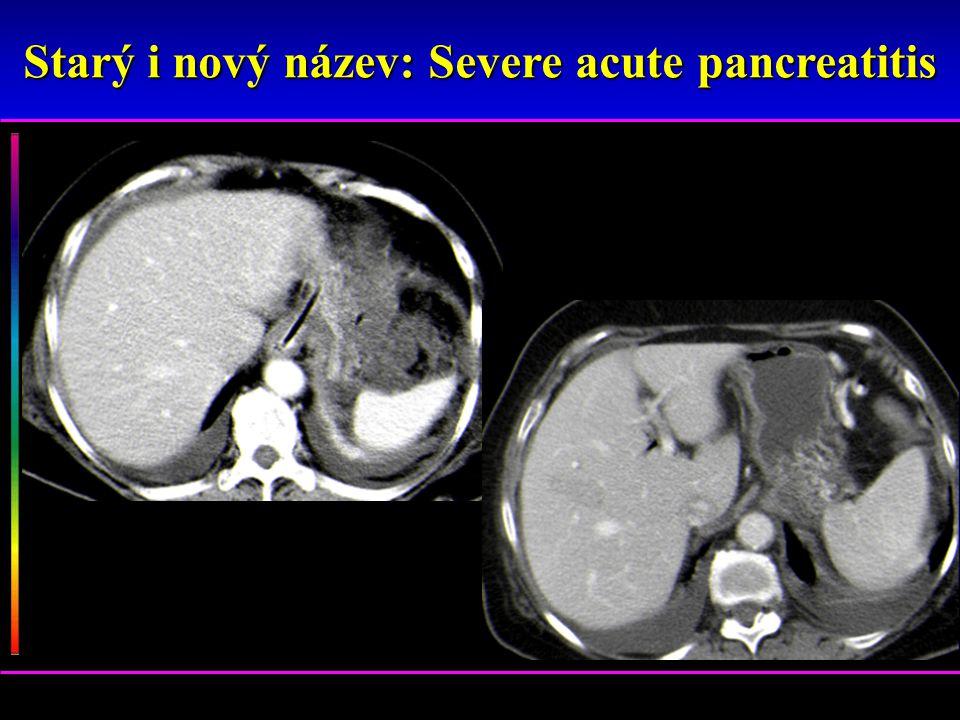 Starý i nový název: Severe acute pancreatitis