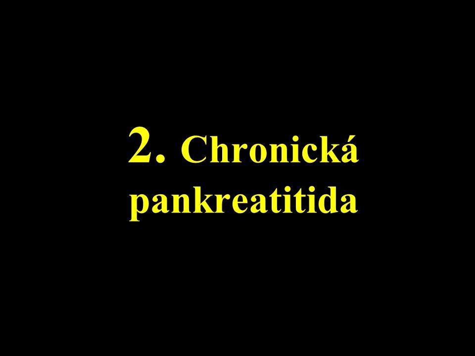 2. Chronická pankreatitida