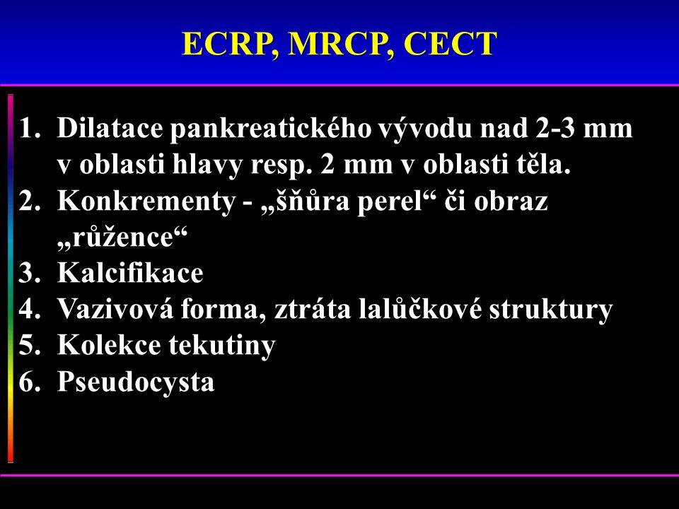 """1.Dilatace pankreatického vývodu nad 2-3 mm v oblasti hlavy resp. 2 mm v oblasti těla. 2.Konkrementy - """"šňůra perel"""" či obraz """"růžence"""" 3.Kalcifikace"""
