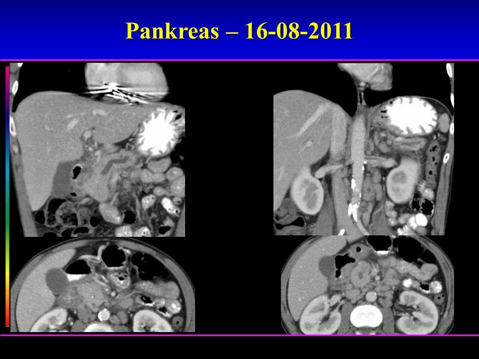Pankreas – 16-08-2011