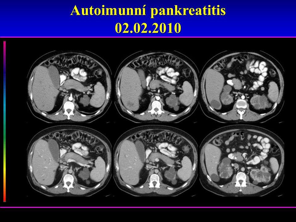 Autoimunní pankreatitis 02.02.2010