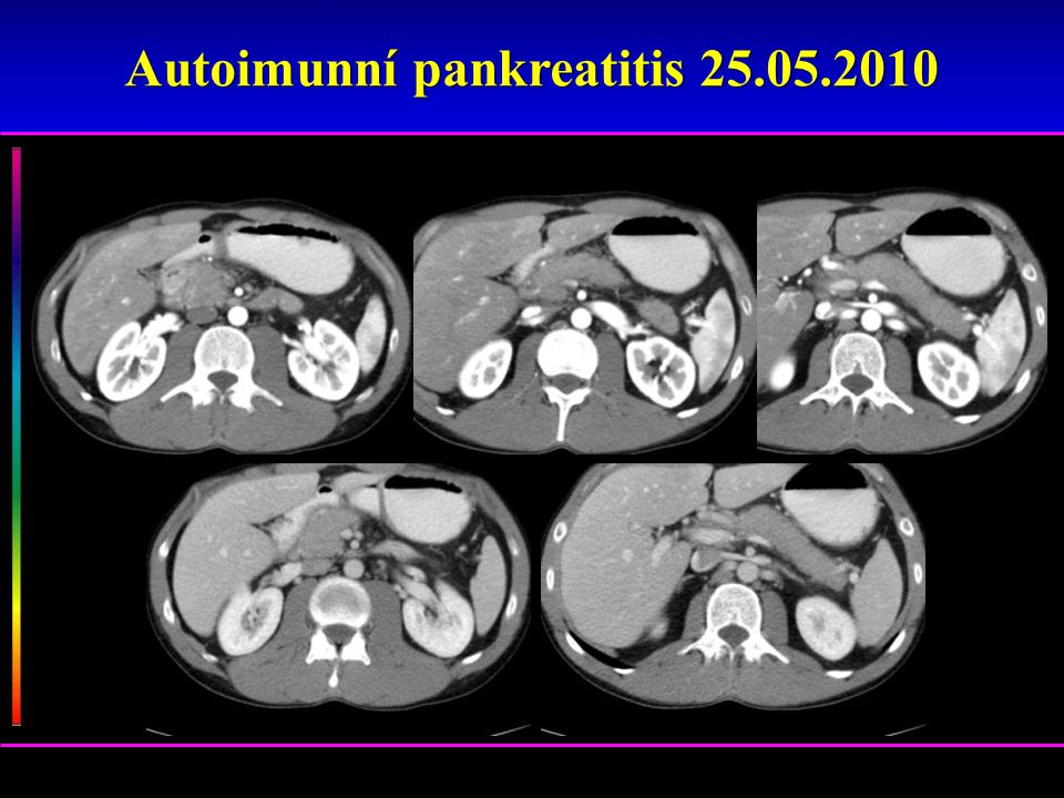 Autoimunní pankreatitis 25.05.2010