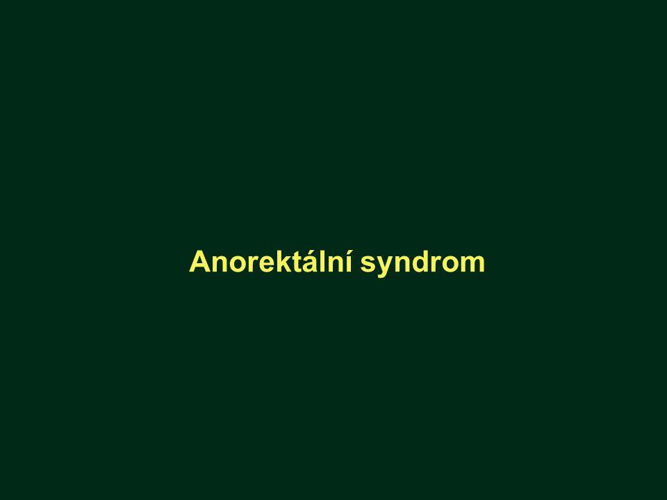 Anorektální syndrom