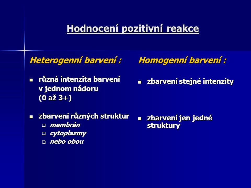 Hodnocení pozitivní reakce Heterogenní barvení : různá intenzita barvení různá intenzita barvení v jednom nádoru (0 až 3+) zbarvení různých struktur z