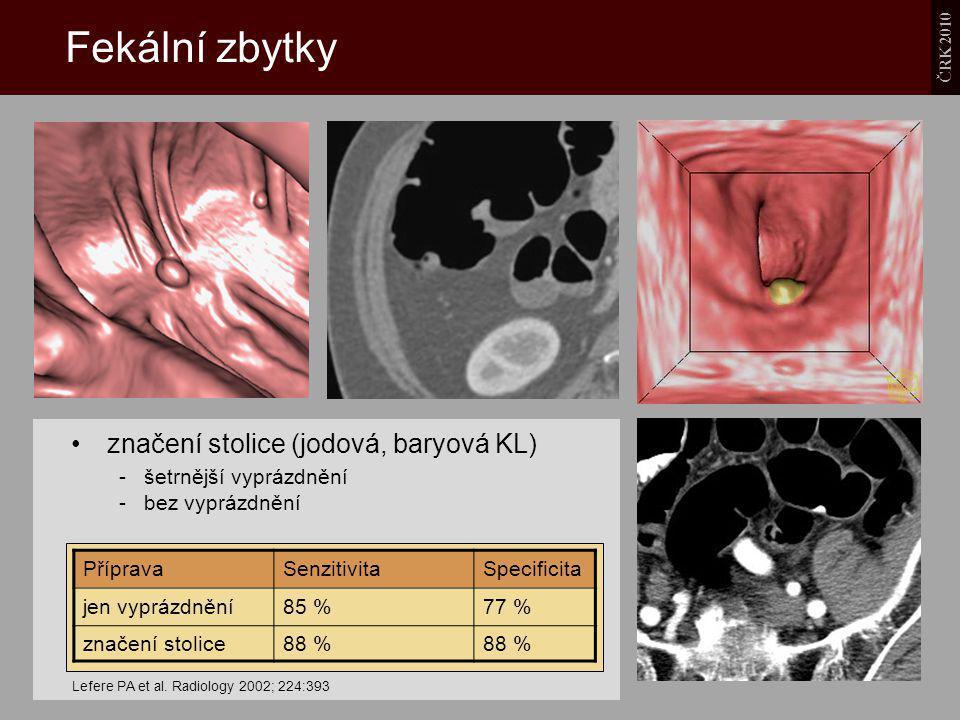 ČRK 2010 Fekální zbytky značení stolice (jodová, baryová KL) - šetrnější vyprázdnění - bez vyprázdnění Lefere PA et al. Radiology 2002; 224:393 Přípra