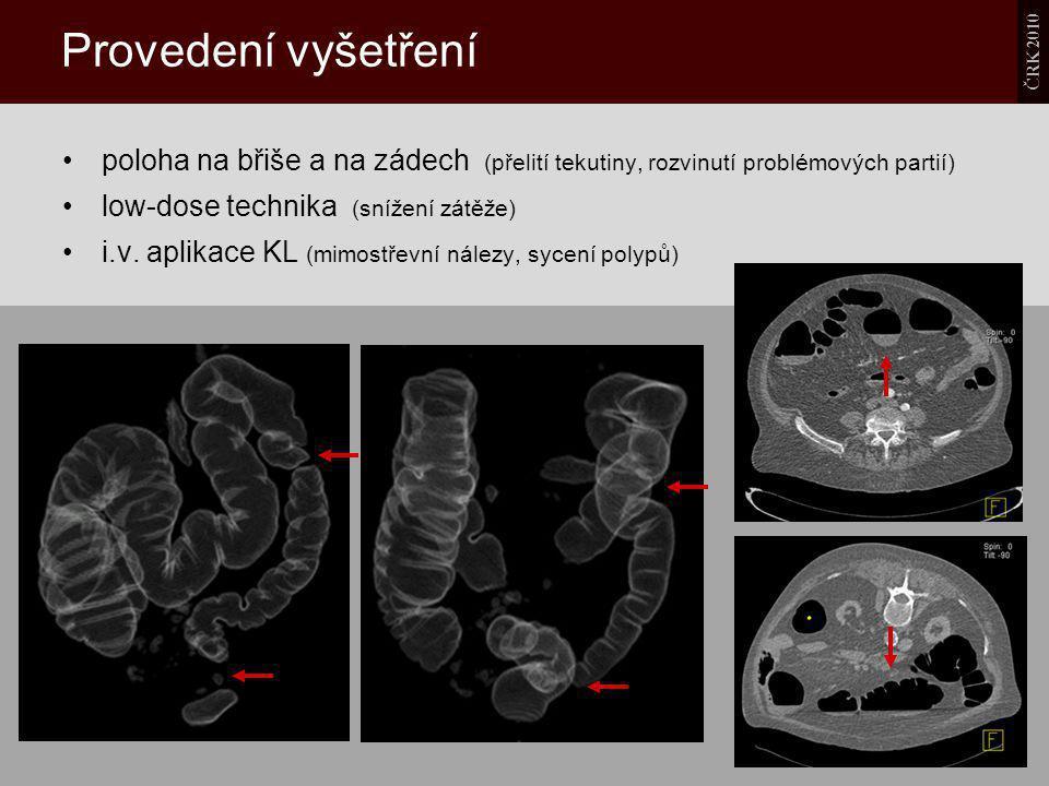 ČRK 2010 Provedení vyšetření poloha na břiše a na zádech (přelití tekutiny, rozvinutí problémových partií) low-dose technika (snížení zátěže) i.v. apl