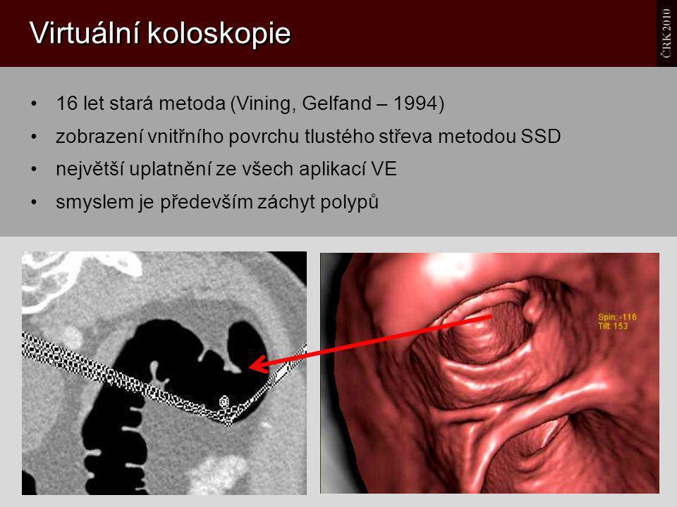 Virtuální koloskopie 16 let stará metoda (Vining, Gelfand – 1994) zobrazení vnitřního povrchu tlustého střeva metodou SSD největší uplatnění ze všech