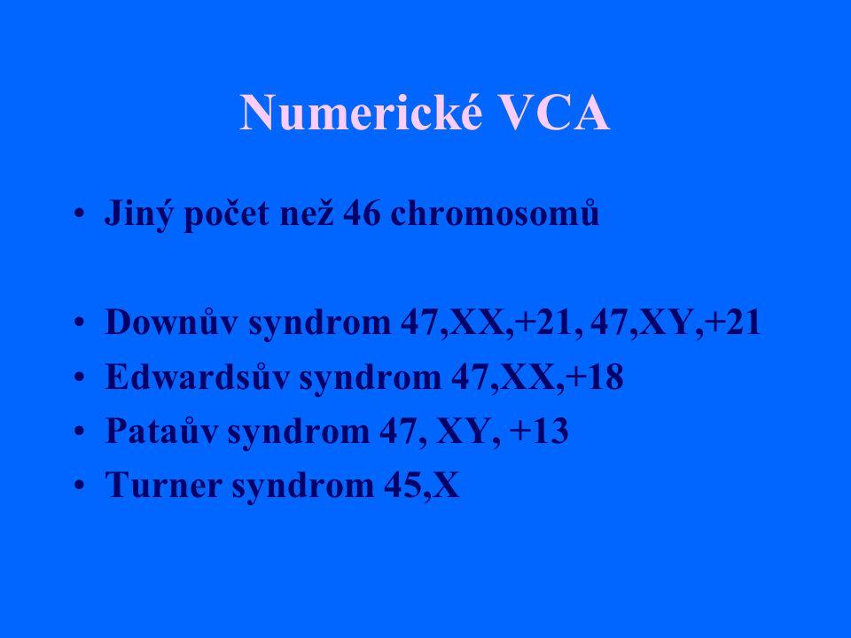 Numerické VCA Jiný počet než 46 chromosomů Downův syndrom 47,XX,+21, 47,XY,+21 Edwardsův syndrom 47,XX,+18 Pataův syndrom 47, XY, +13 Turner syndrom 4