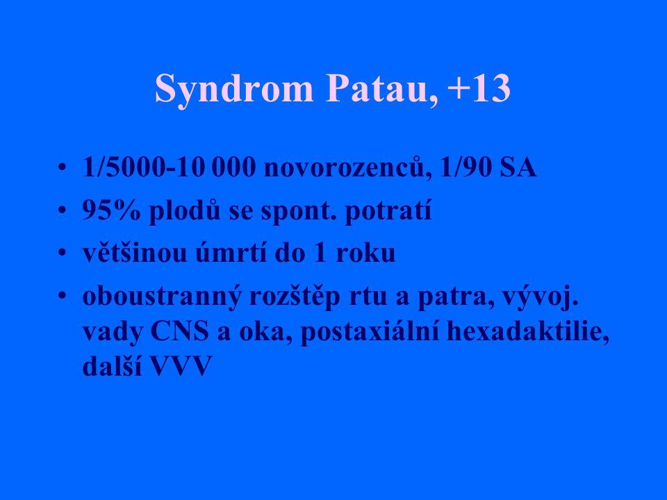 Syndrom Patau, +13 1/5000-10 000 novorozenců, 1/90 SA 95% plodů se spont. potratí většinou úmrtí do 1 roku oboustranný rozštěp rtu a patra, vývoj. vad
