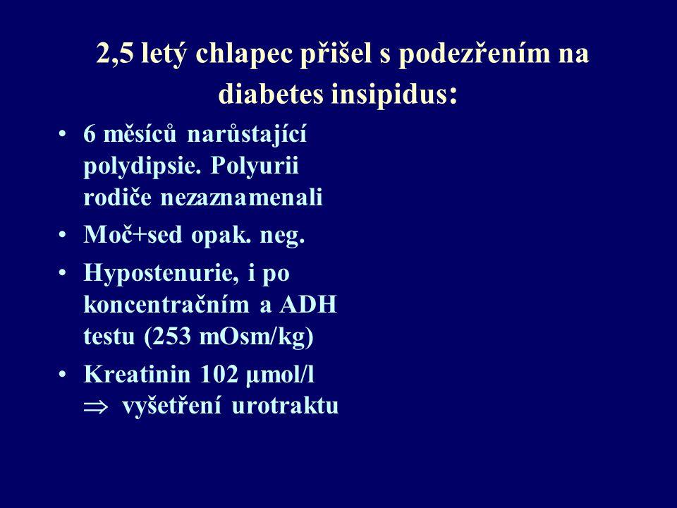 2,5 letý chlapec přišel s podezřením na diabetes insipidus : 6 měsíců narůstající polydipsie. Polyurii rodiče nezaznamenali Moč+sed opak. neg. Hyposte