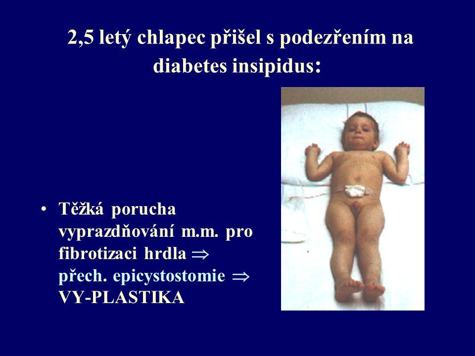 2,5 letý chlapec přišel s podezřením na diabetes insipidus : Dg. závěr z mikční cystoradiografie: Pasivní VUR V.stupně oboustranně  REIMPLANTACE Těžk