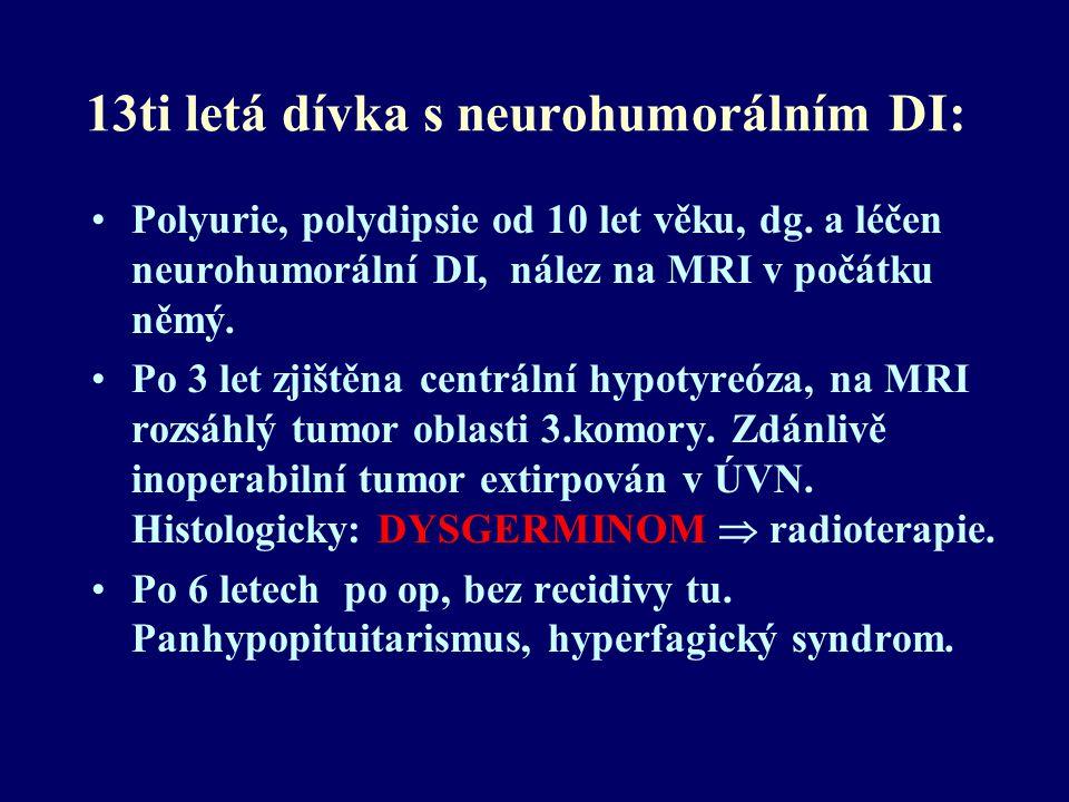 13ti letá dívka s neurohumorálním DI: Polyurie, polydipsie od 10 let věku, dg. a léčen neurohumorální DI, nález na MRI v počátku němý. Po 3 let zjiště