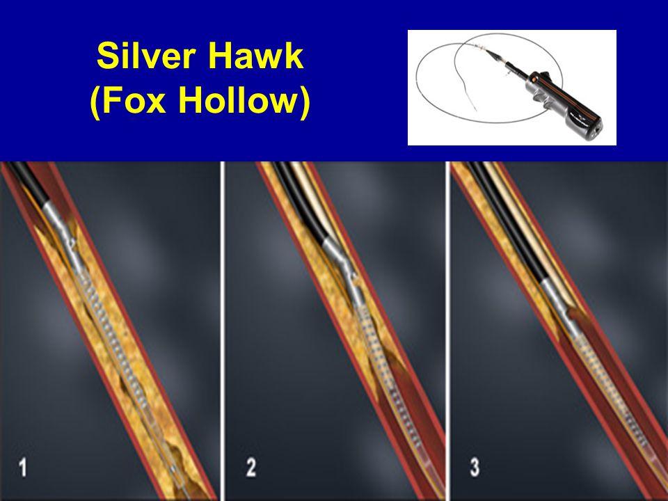 Silver Hawk (Fox Hollow)