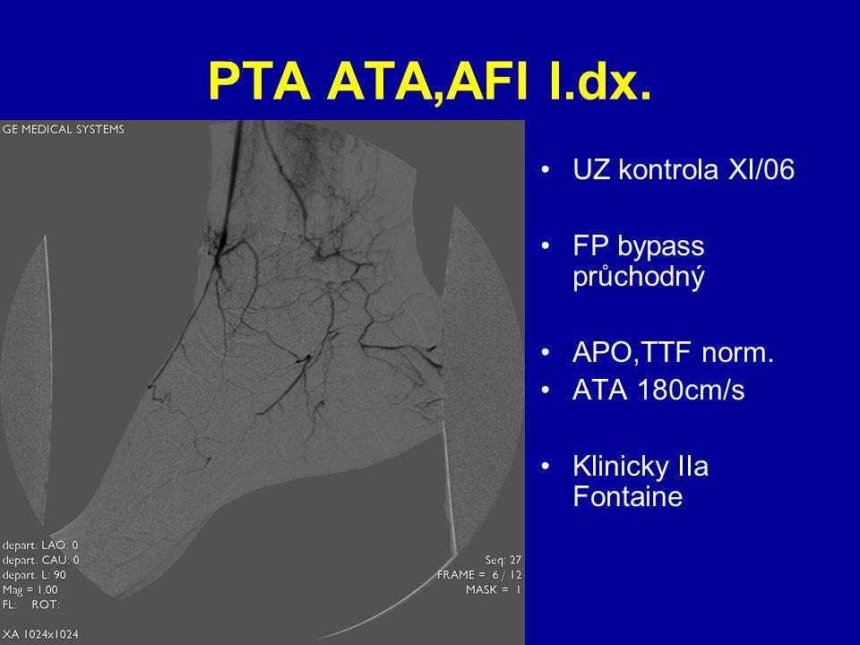 PTA ATA,AFI l.dx. UZ kontrola XI/06 FP bypass průchodný APO,TTF norm. ATA 180cm/s Klinicky IIa Fontaine