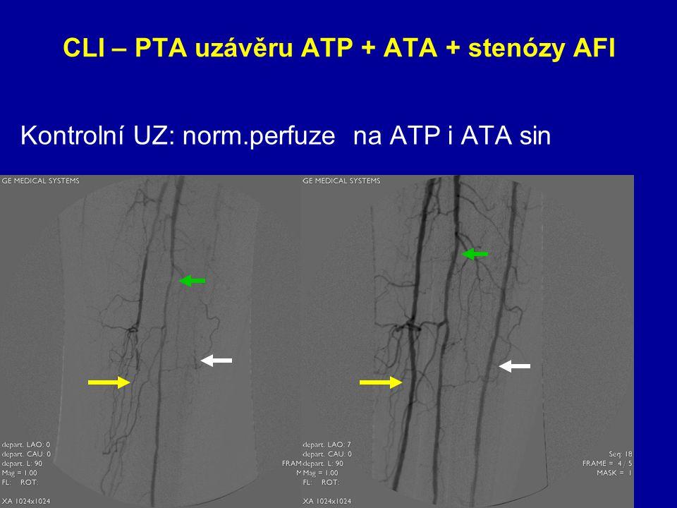 CLI – PTA uzávěru ATP + ATA + stenózy AFI Kontrolní UZ: norm.perfuze na ATP i ATA sin