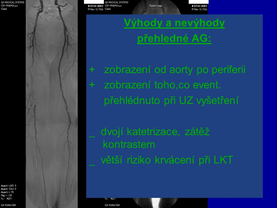 Výhody a nevýhody přehledné AG: + zobrazení od aorty po periferii + zobrazení toho,co event. přehlédnuto při UZ vyšetření _ dvojí katetrizace, zátěž k