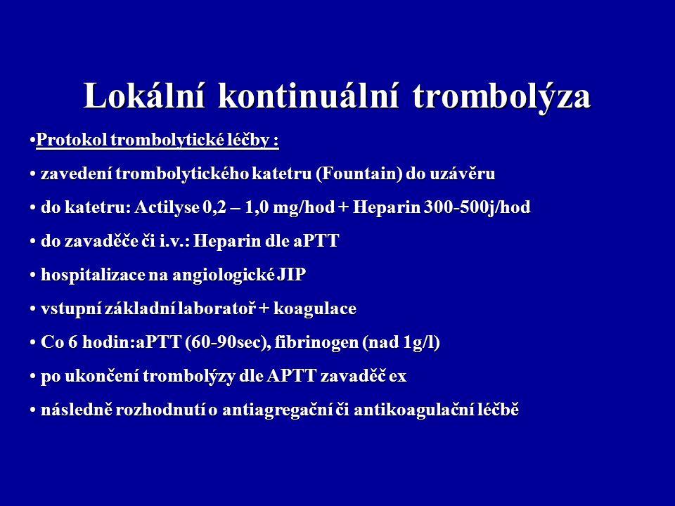 Lokální kontinuální trombolýza Protokol trombolytické léčby :Protokol trombolytické léčby : zavedení trombolytického katetru (Fountain) do uzávěru zav