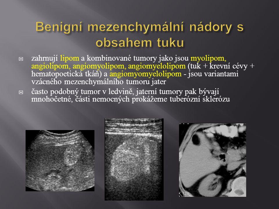 Benigní mezenchymální nádory s obsahem tuku  zahrnují lipom a kombinované tumory jako jsou myolipom, angiolipom, angiomyolipom, angiomyelolipom (tuk