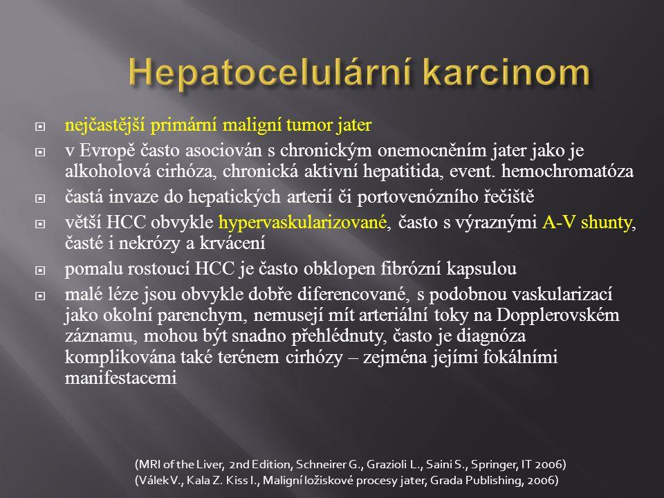 Hepatocelulární karcinom  nejčastější primární maligní tumor jater  v Evropě často asociován s chronickým onemocněním jater jako je alkoholová cirhó