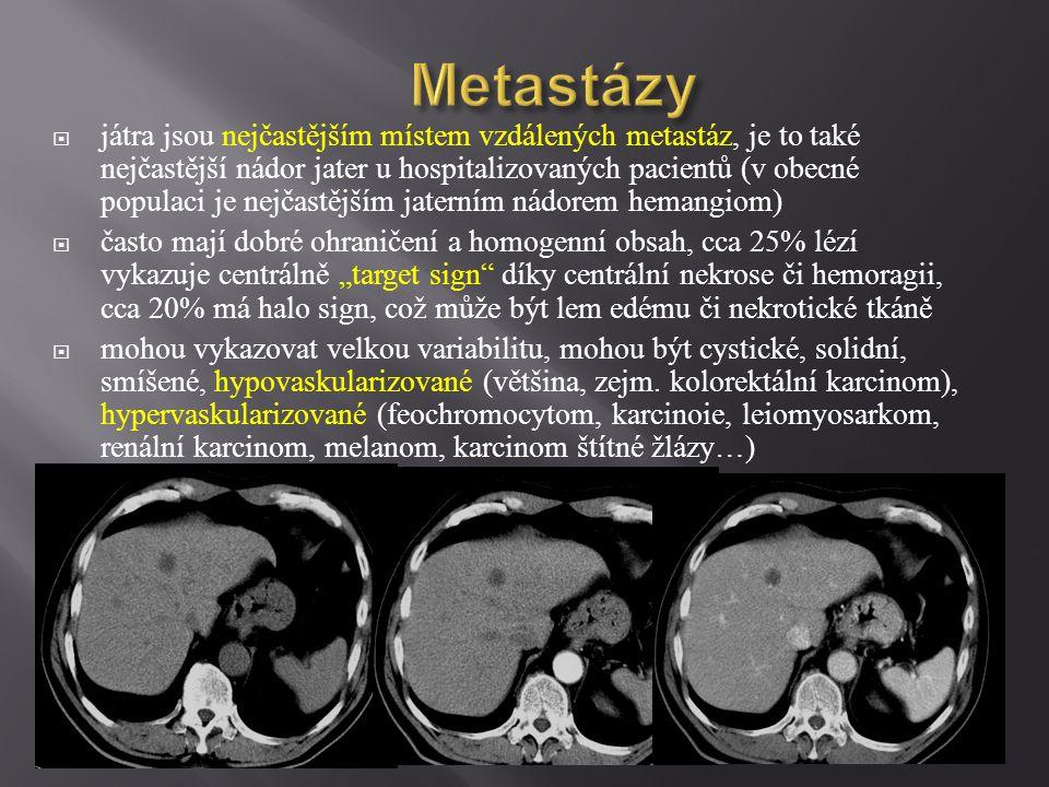 Metastázy  játra jsou nejčastějším místem vzdálených metastáz, je to také nejčastější nádor jater u hospitalizovaných pacientů (v obecné populaci je