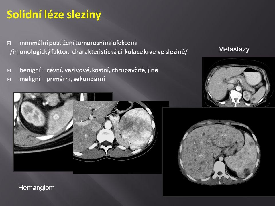 Solidní léze sleziny  minimální postižení tumorosními afekcemi /imunologický faktor, charakteristická cirkulace krve ve slezině/  benigní – cévní, v