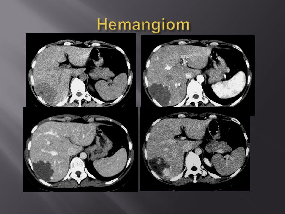 Hemangiom - atypický