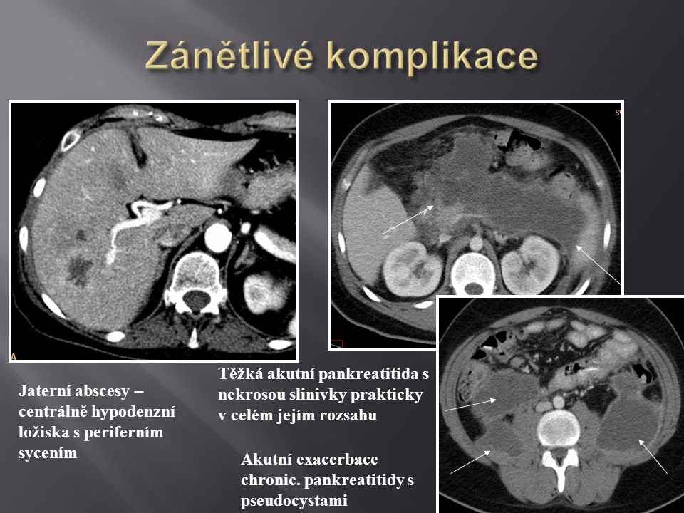 Jaterní abscesy – centrálně hypodenzní ložiska s periferním sycením Těžká akutní pankreatitida s nekrosou slinivky prakticky v celém jejím rozsahu Aku