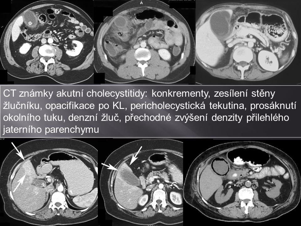 CT známky akutní cholecystitidy: konkrementy, zesílení stěny žlučníku, opacifikace po KL, pericholecystická tekutina, prosáknutí okolního tuku, denzní