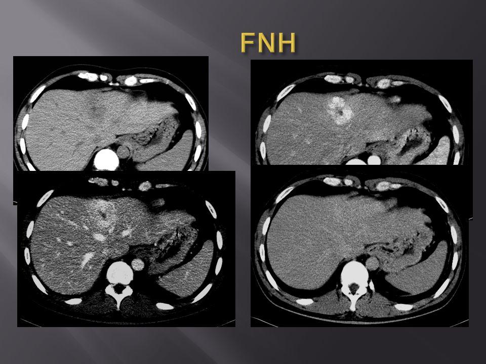  klinické podezření na poranění při negativním UZ vyšetření  podezření na abscesovou formaci  akutní pankreatitida  drenáž – kolikvovaný hematom, bilom, serom  invaginace, tumor