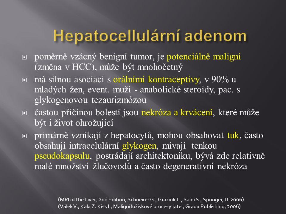 Cholangiokarcinom  méně častý než HCC, často u starších pacientů  centrální forma je asociována s dilatací žlučovodů, periferní forma může vytvářet velké ložisko bez dilatace žlučových cest  častá je segmentální biliární a vaskulární obstrukce, vede k segmentální atrofii a kompenzatorní hypertrofii nepostižených segmentů, většinou hypovaskularizovaný tumor  dělení:  a) intrahepatální (periferní typ - asi 10 %) -z malých nitrojaterních žlučovodů  b) hilový typ (Klatskinův tumor – nádor v oblasti bifurkace žlučovodů)  c) karcinom extrahepatálních žlučovodů (MRI of the Liver, 2nd Edition, Schneirer G., Grazioli L., Saini S., Springer, IT 2006) (Válek V., Kala Z.