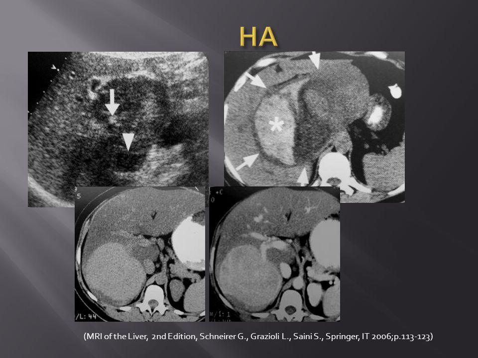 Lehká = mírná akutní pankreatitida (edematózní, intersticiální) 75% případů 75% případů segmentální pankreatitida u 20% (hlava – segmentální pankreatitida u 20% (hlava – cholelitiáza) cholelitiáza) až 28% negativní CT.