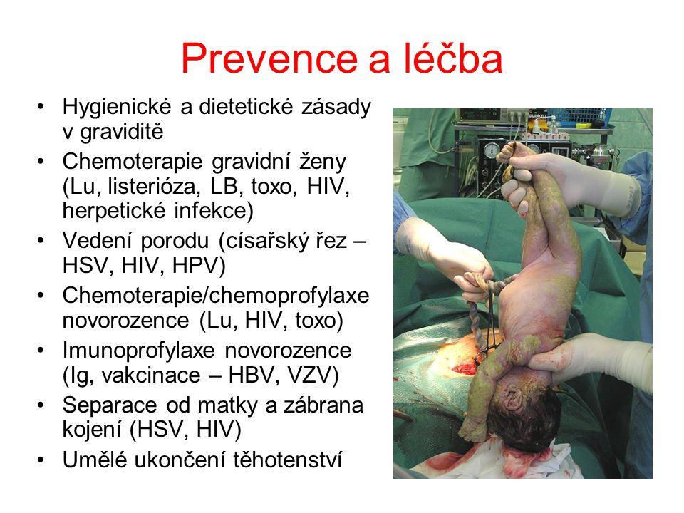 Bakteriální infekce Syfilis Kapavka Chlamydióza Listerióza Lymeská borrelióza