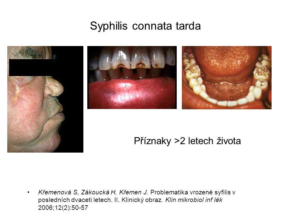 Syfilis Profylaxe poškození dítěte Dg.: sérologie v 3.