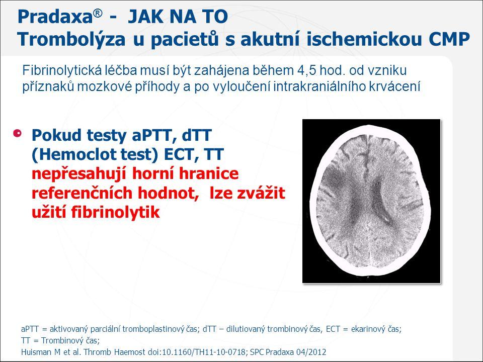 Pradaxa ® - JAK NA TO Trombolýza u pacietů s akutní ischemickou CMP Pokud testy aPTT, dTT (Hemoclot test) ECT, TT nepřesahují horní hranice referenční