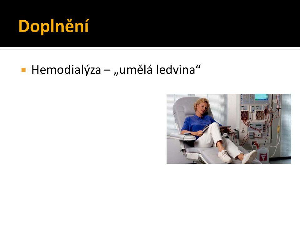 """ Hemodialýza – """"umělá ledvina"""""""