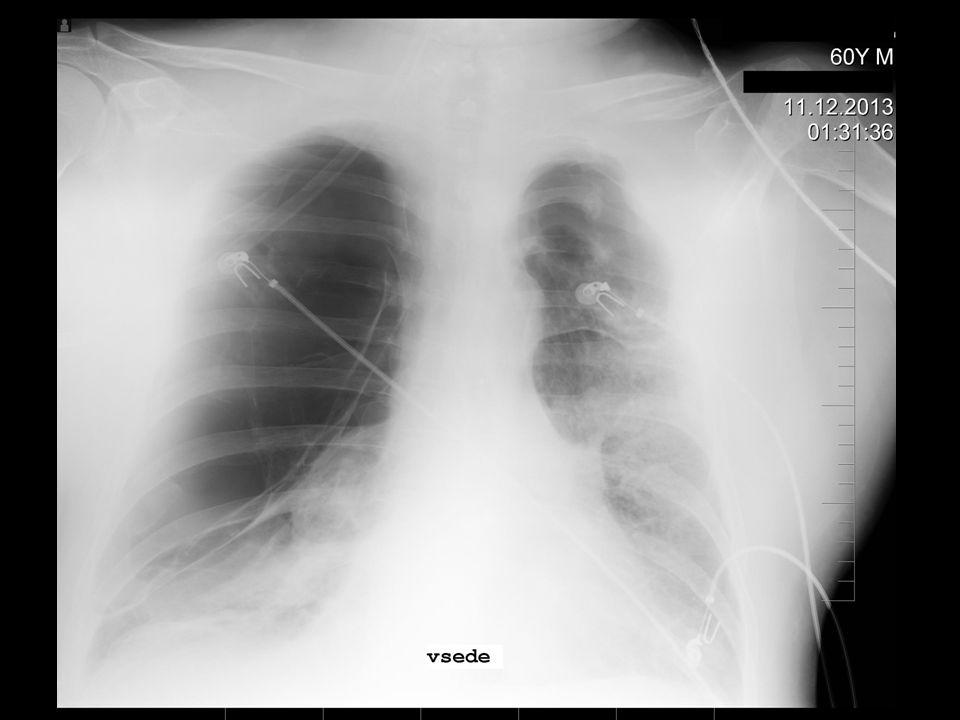 Další postup? drenáž hrudníku? NIV? intubace? další rozšíření diagnostiky?