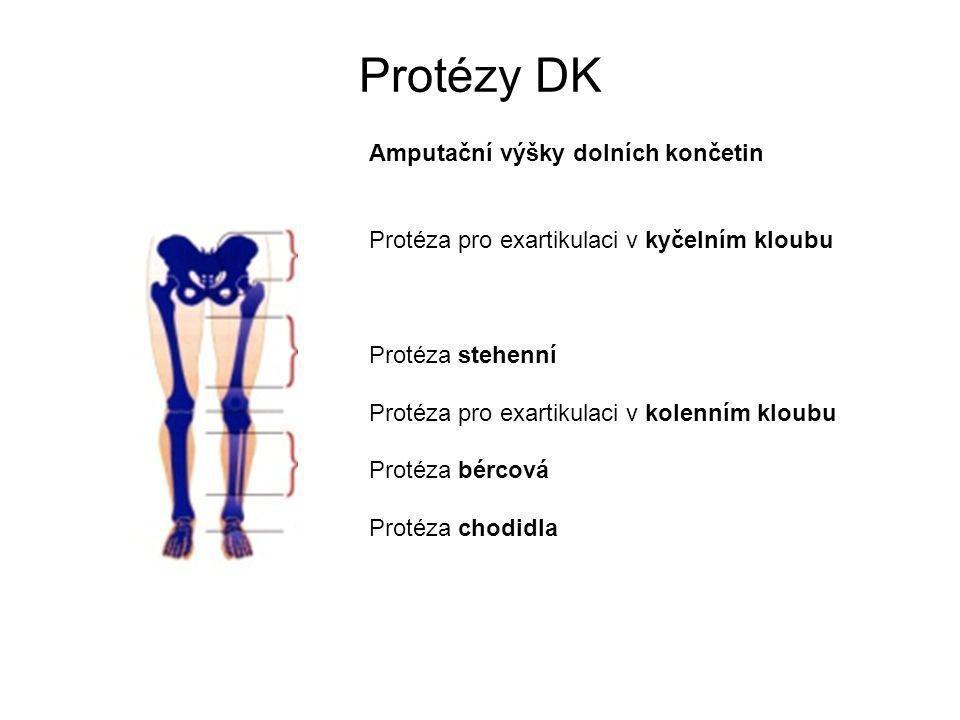 Protézy DK Amputační výšky dolních končetin Protéza pro exartikulaci v kyčelním kloubu Protéza stehenní Protéza pro exartikulaci v kolenním kloubu Protéza bércová Protéza chodidla