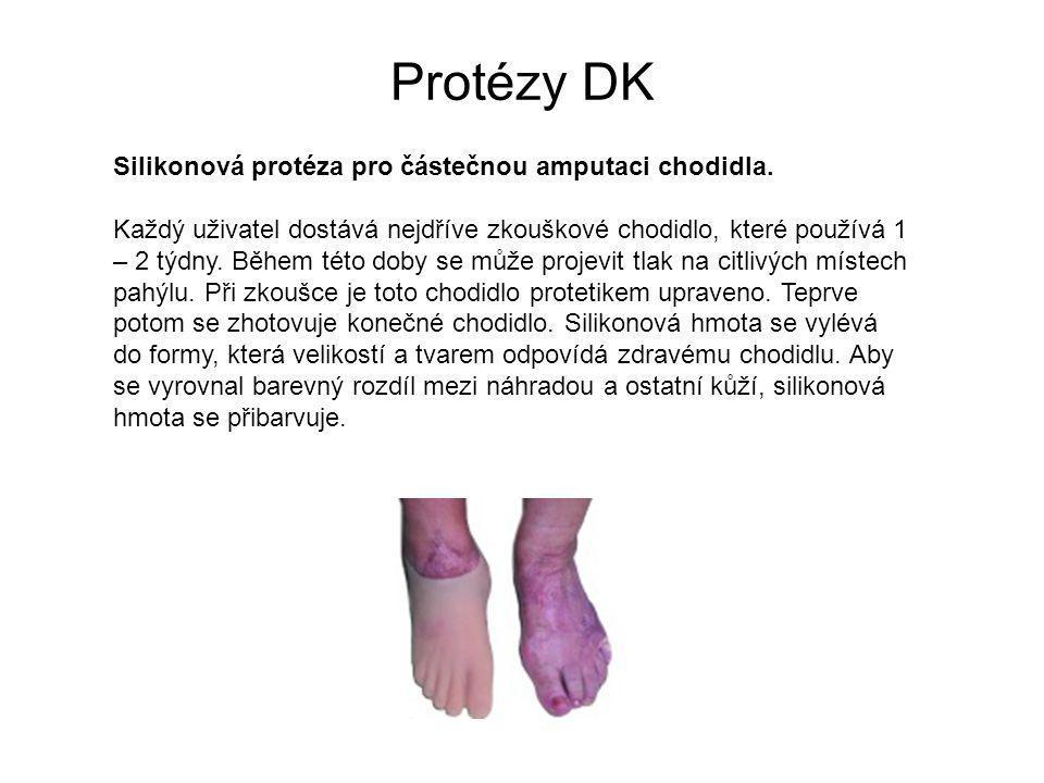 Protézy DK Silikonová protéza pro částečnou amputaci chodidla.