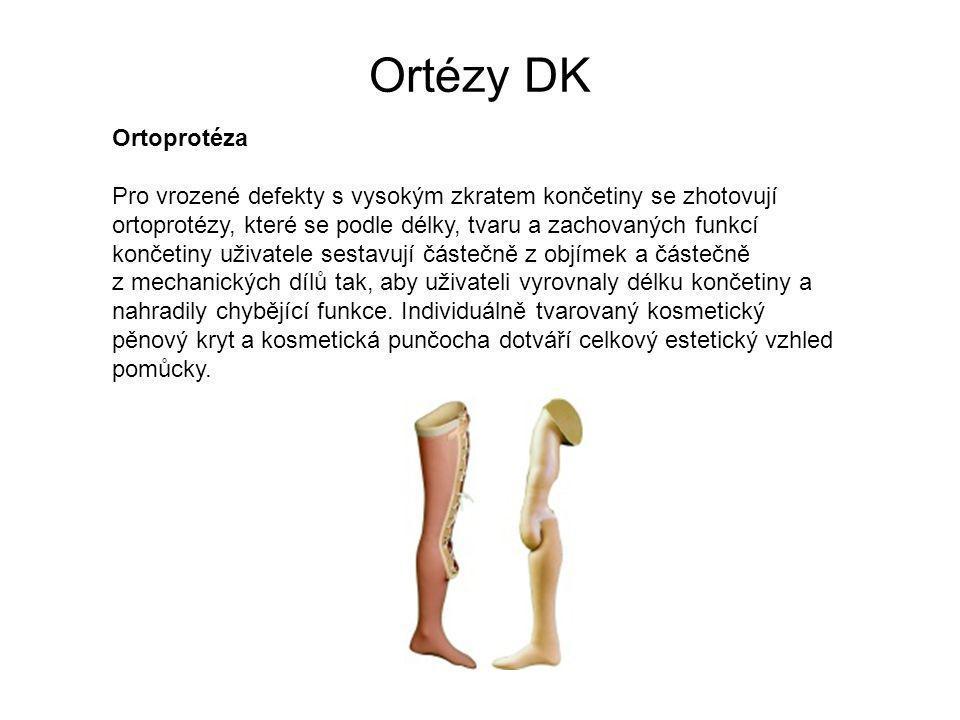 Ortézy DK Ortoprotéza Pro vrozené defekty s vysokým zkratem končetiny se zhotovují ortoprotézy, které se podle délky, tvaru a zachovaných funkcí končetiny uživatele sestavují částečně z objímek a částečně z mechanických dílů tak, aby uživateli vyrovnaly délku končetiny a nahradily chybějící funkce.