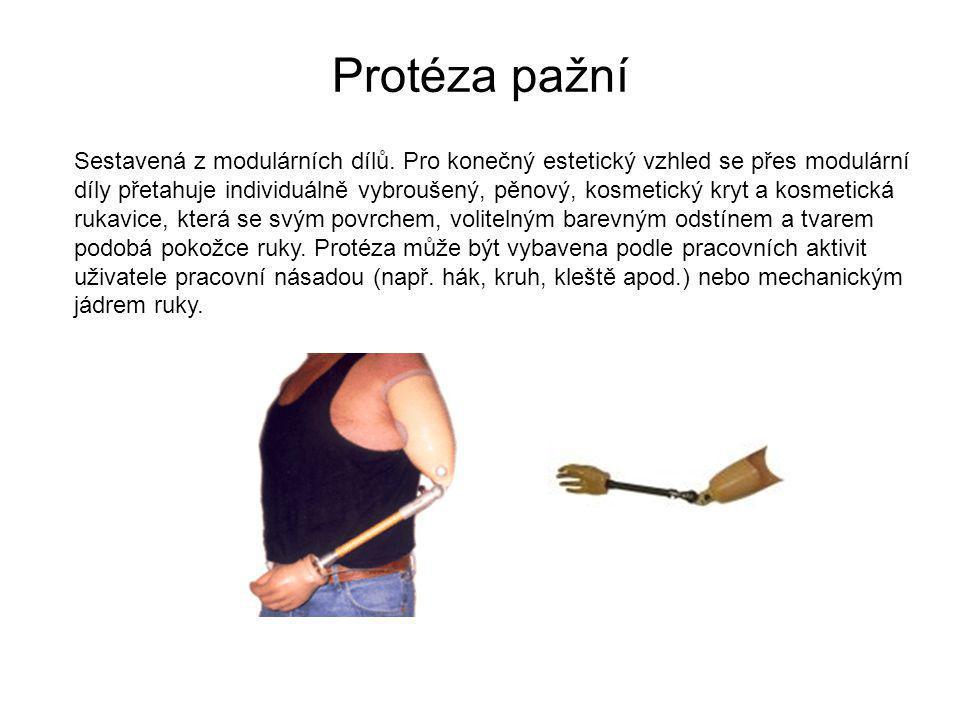 Protéza pažní Sestavená z modulárních dílů.