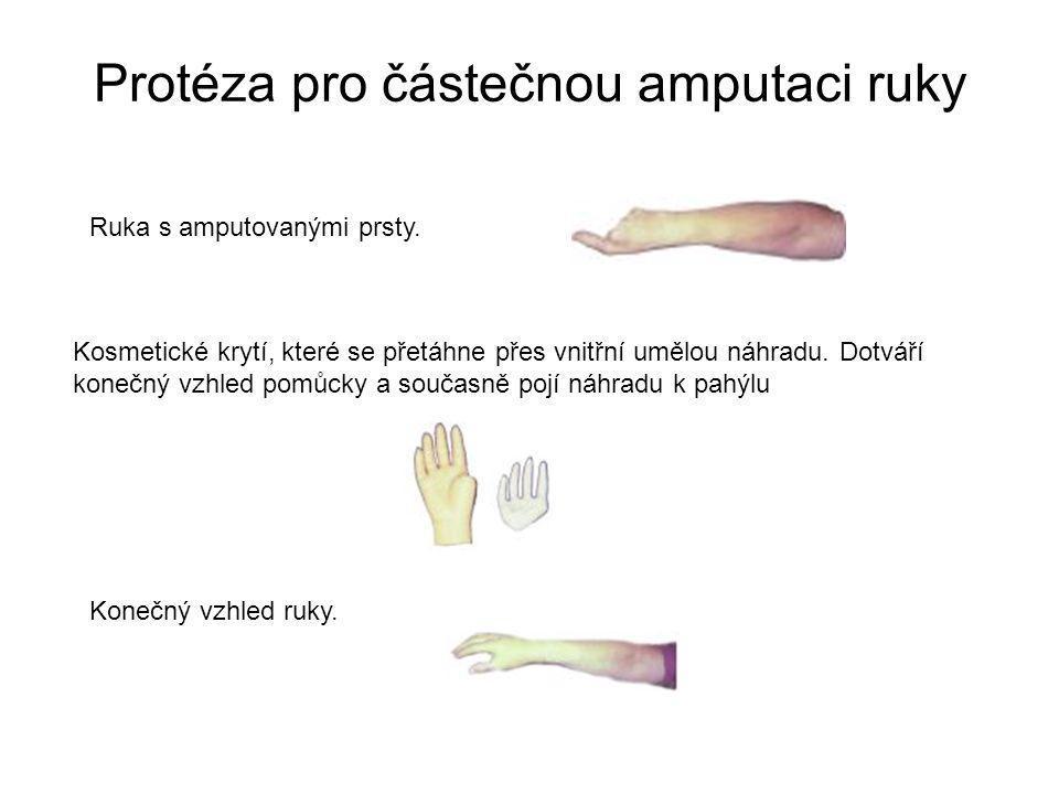 Protéza myoelektrická Pomocí povrchových kožních elektrod, které jsou zabudovány v protézovém pahýlovém lůžku na individuálně stanoveném nejvhodnějším místě se přenášejí svalové potenciály uživatele na řídící elektroniku protézy.
