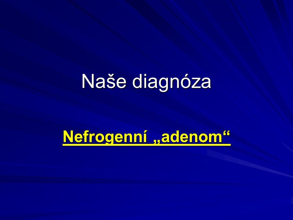"""Naše diagnóza Nefrogenní """"adenom"""
