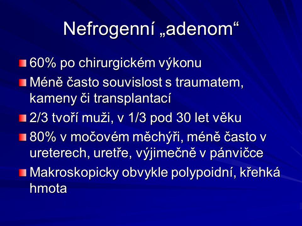 60% po chirurgickém výkonu Méně často souvislost s traumatem, kameny či transplantací 2/3 tvoří muži, v 1/3 pod 30 let věku 80% v močovém měchýři, méně často v ureterech, uretře, výjimečně v pánvičce Makroskopicky obvykle polypoidní, křehká hmota