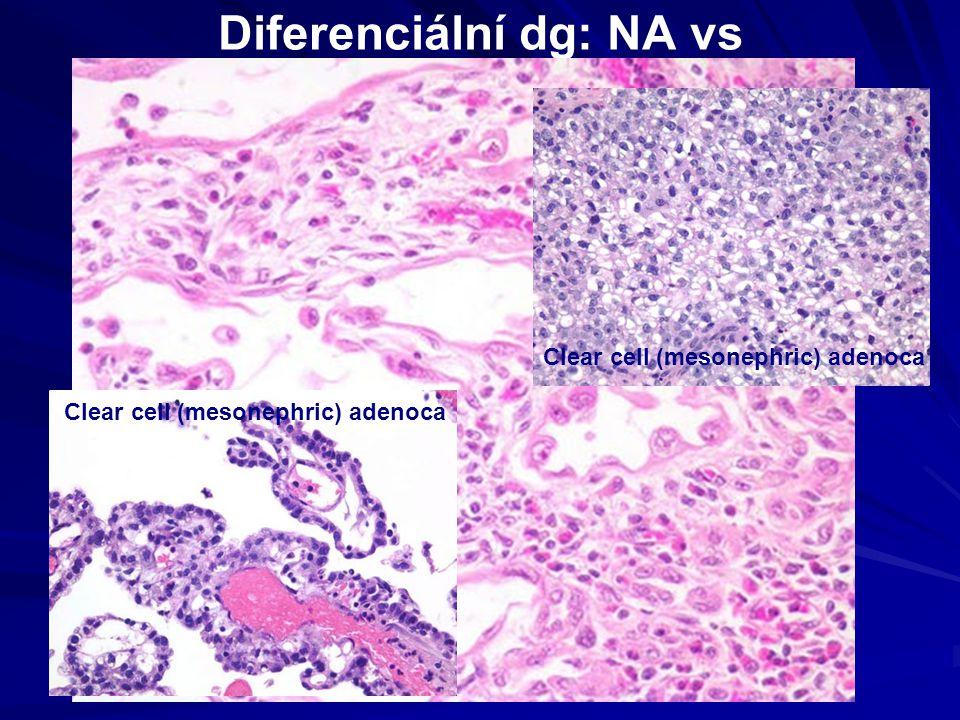 Diferenciální dg: NA vs Clear cell (mesonephric) adenoca
