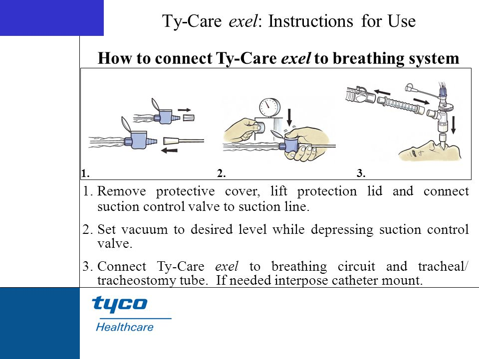 Ty-Care exel: Instructions for Use 1.Remove protective cover, lift protection lid and connect suction control valve to suction line. 2.Set vacuum to d